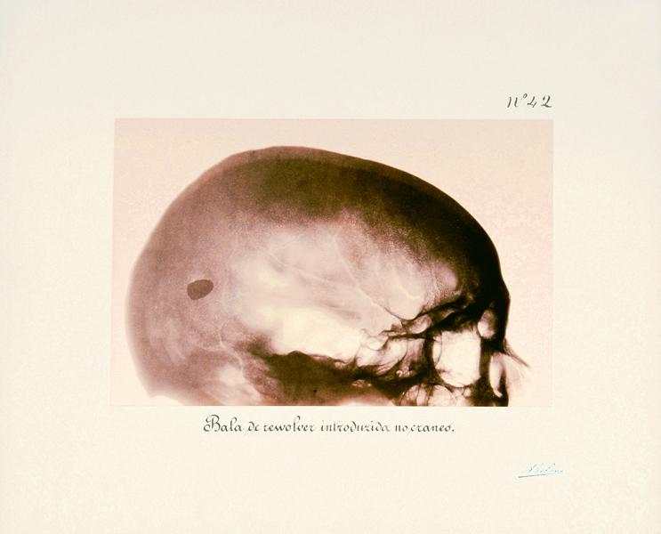 Exposição FOTO-RADIOGRAFIAS, 1896, de Augusto Bobone